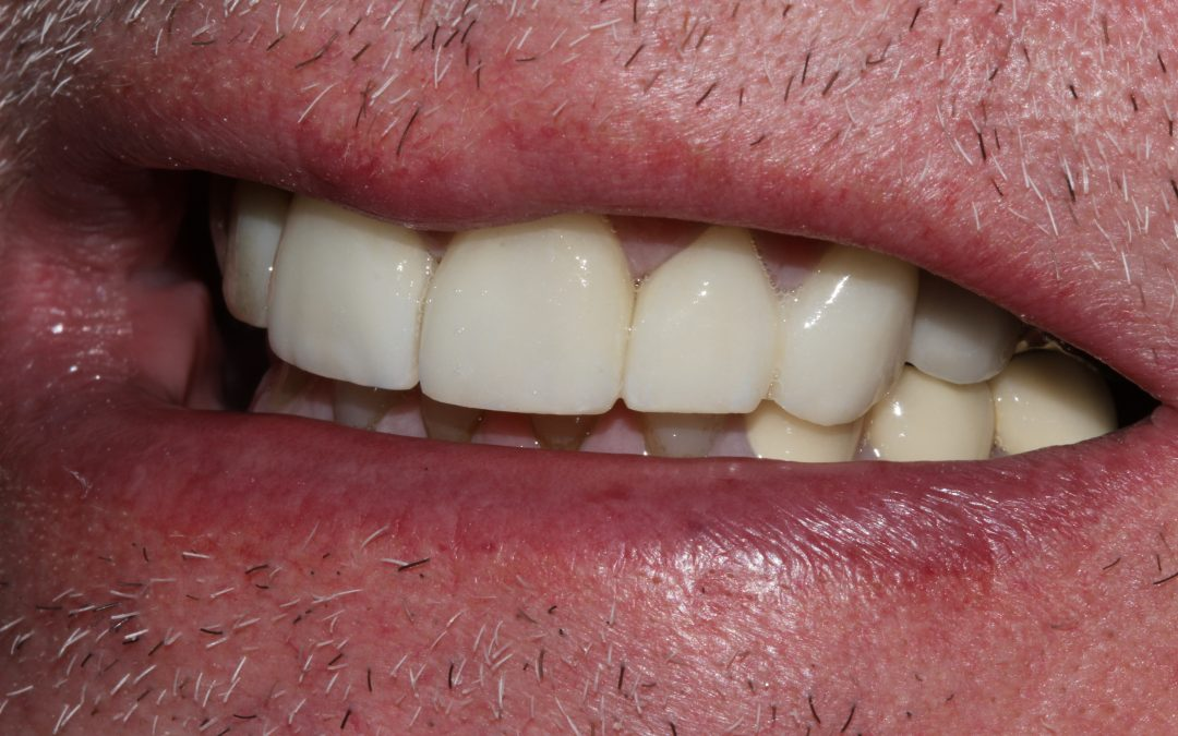 Mike's veneers and implant