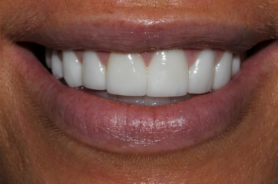 Carolyn's crowns and veneers