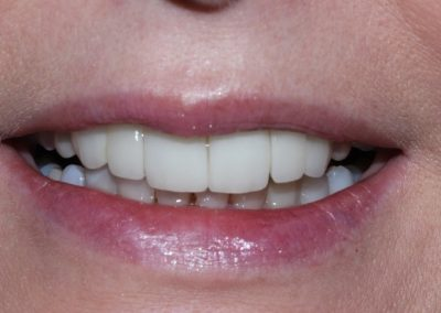 Mandy's ceramic bridge and veneers