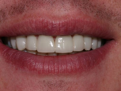 Robert's ceramic crowns