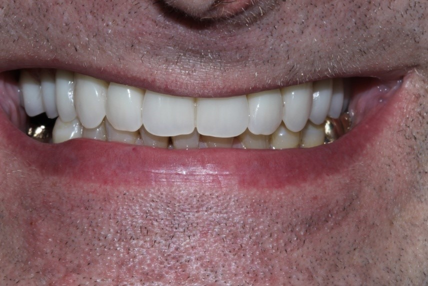Richard's implants and crowns